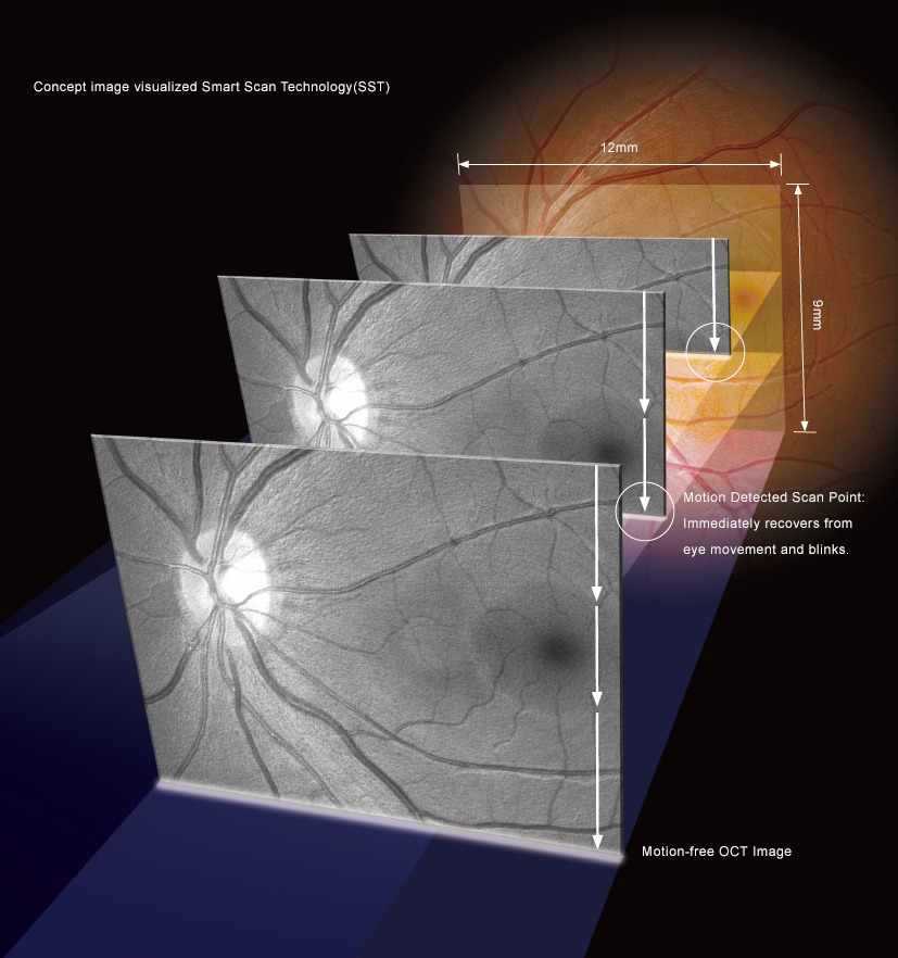 optical coherence tomography hoct-1 huvitz - us ophthalmic